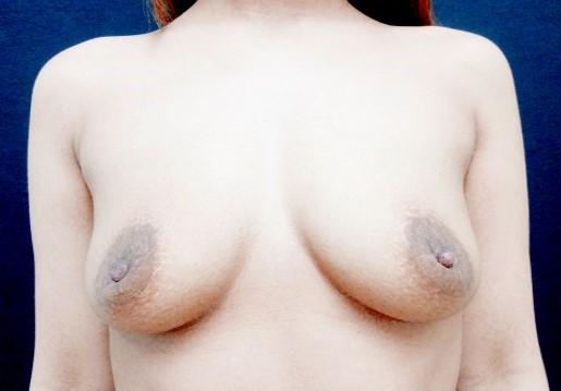 授乳後の胸や乳首のサイズに戻りたい
