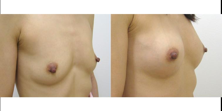 脂肪注入豊胸の症例写真