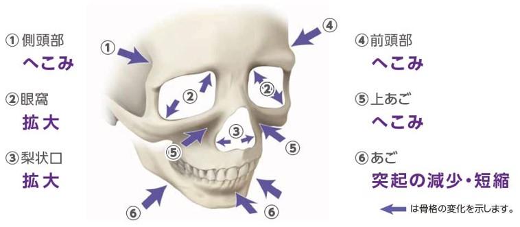 加齢による骨格の変化を熟知し、最適な治療を提案
