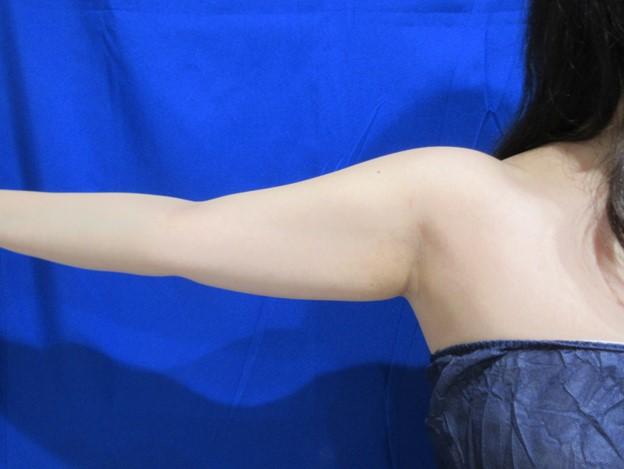 二の腕・付け根周りを細くしたい
