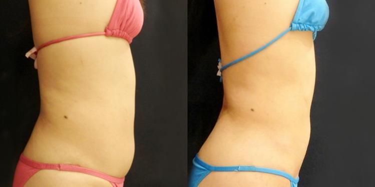 腹部・ウエスト・腰の脂肪吸引1
