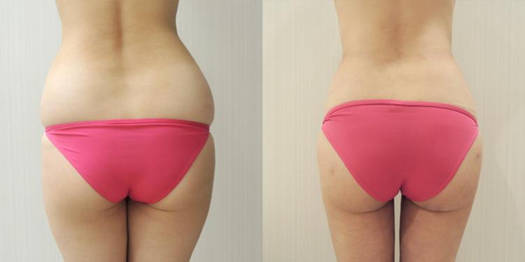 腹部・ウエスト・腰の脂肪吸引2