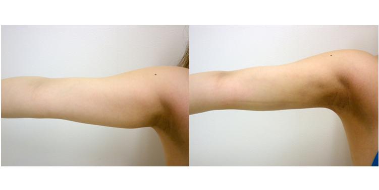 二の腕・振袖脂肪吸引