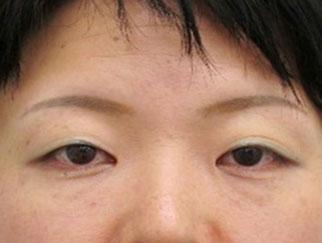 目の開きが悪い眠たそうな印象を変えたい