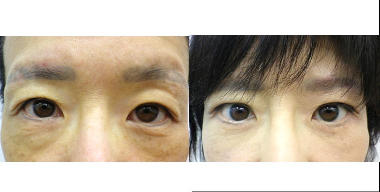 眼瞼下垂3