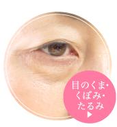 目のくま・くぼみ・たるみ