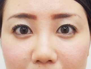 だんご鼻を直したい鼻先の丸みを直したい