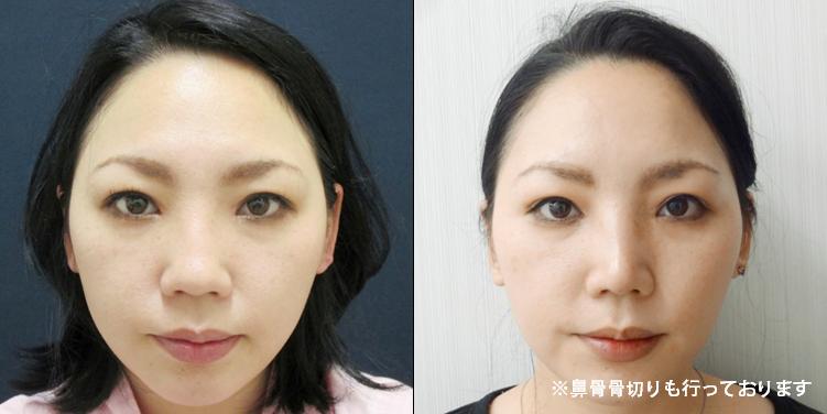 鼻尖縮小・耳介軟骨移植5