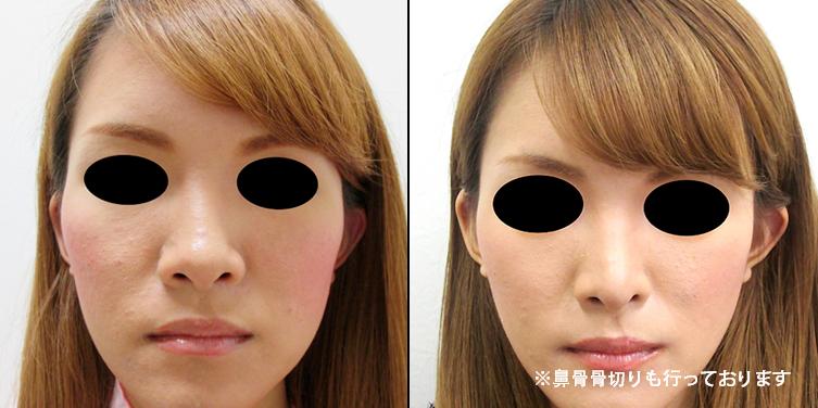 鼻中隔延長2