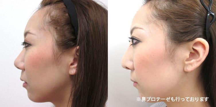 鼻中隔延長3