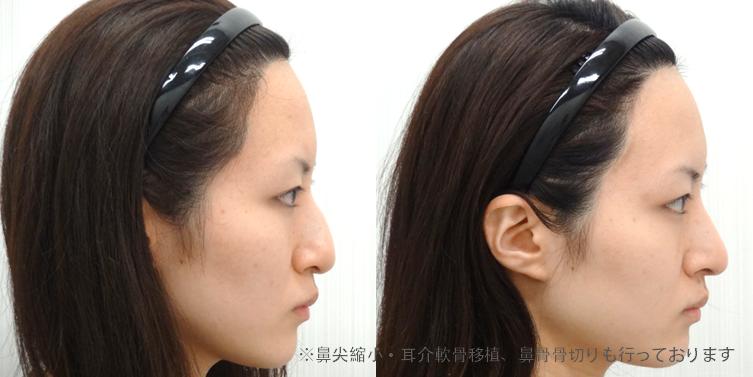 わし鼻修正2