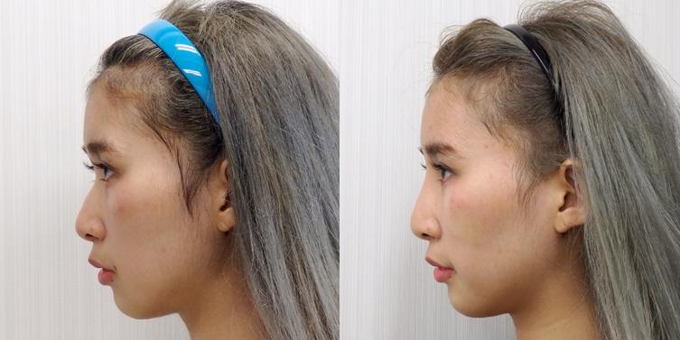 鼻プロテーゼ3