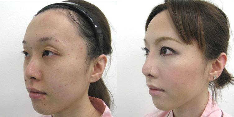 鼻プロテーゼ5