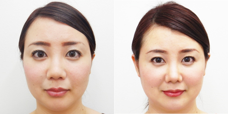 鼻尖縮小・耳介軟骨移植2