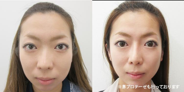鼻尖縮小・耳介軟骨移植3