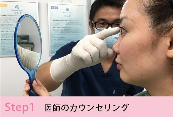 鼻プロテーゼの施術手順を簡単にご説明Step1 医師のカウンセリング