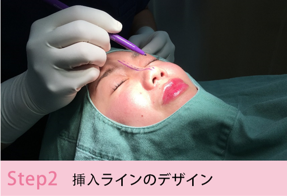 鼻プロテーゼの施術手順を簡単にご説明Step2 挿入ラインのデザイン