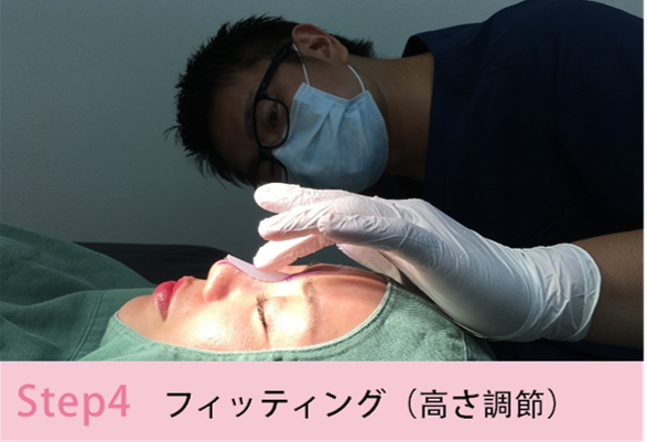 鼻プロテーゼの施術手順を簡単にご説明Step4 フィッテイング(高さ調節)