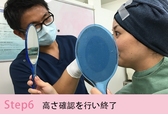 鼻プロテーゼの施術手順を簡単にご説明Step6 高さ確認を行い終了
