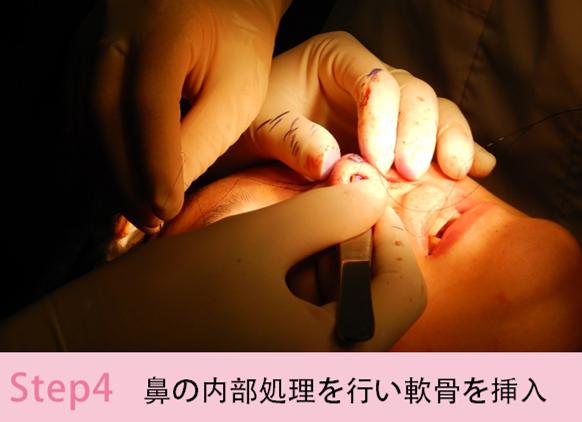 鼻尖縮小・耳介軟骨移植4