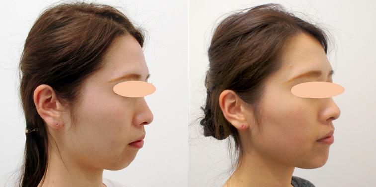 顎のヒアルロン酸注入の症例写真
