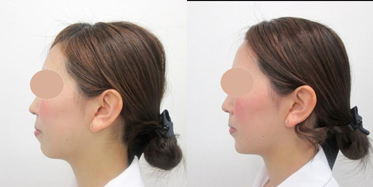 顎のヒアルロン酸注入2