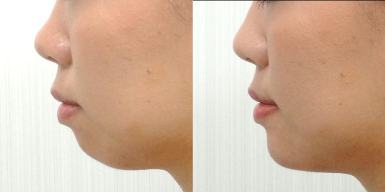 顎のヒアルロン酸注入3