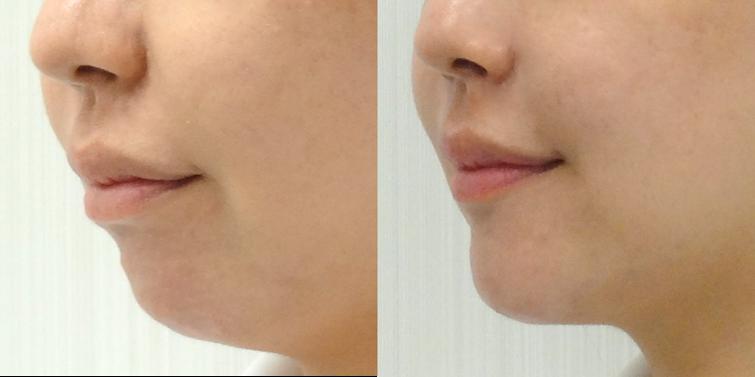 顎のヒアルロン酸注入4