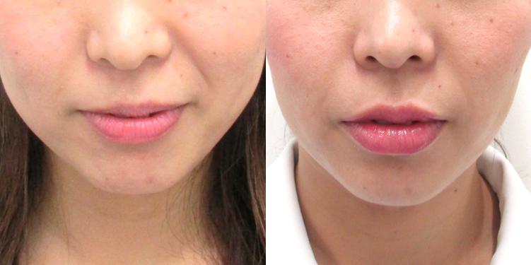 唇のヒアルロン酸注入3