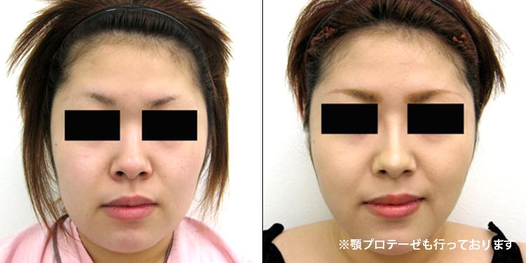 顔の脂肪吸引2