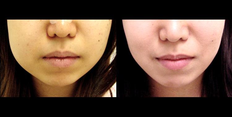顔の脂肪吸引3