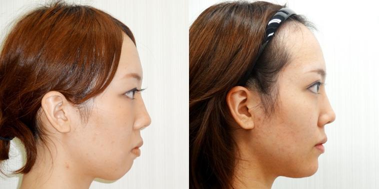 顎プロテーゼ2
