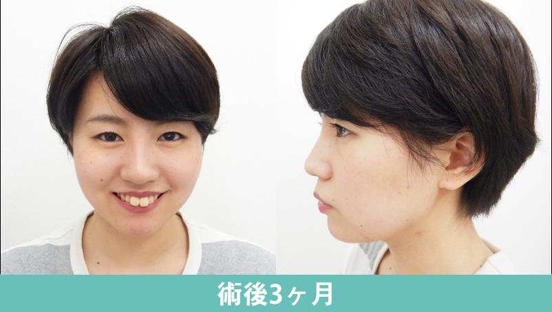 顎プロテーゼ5