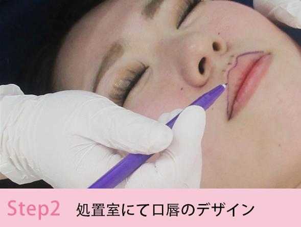唇のヒアルロン酸注入2