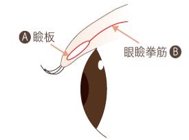埋没法の術式・糸を留める数・処置期間①埋没法の術式は瞼板法(けんばんほう)です