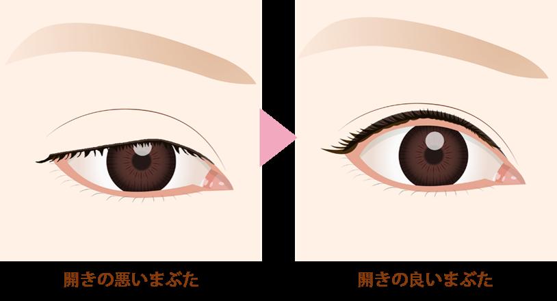眼瞼下垂の効果目を開ける筋肉が弱まり、開きが悪くなった眠そうなまぶたをパッチリ開かせる効果があります。