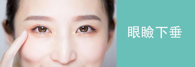 眼瞼下垂の美容整形について