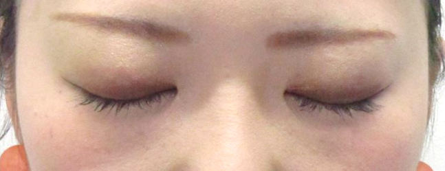 埋没法の術式・糸を留める数・処置期間術後2週間の画像。目を閉じてもとても自然になります。