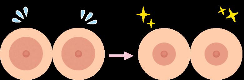 乳輪縮小の効果1