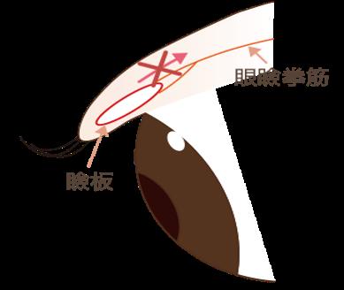眼瞼下垂の仕組みと2種類のタイプ通常、眼瞼挙筋(目を開ける筋肉)が瞼板という軟骨を引っ張りあげることで目が開きます。この機能に何らかの障害があり、目の開きが悪くなっている状態を眼瞼下垂と言います。