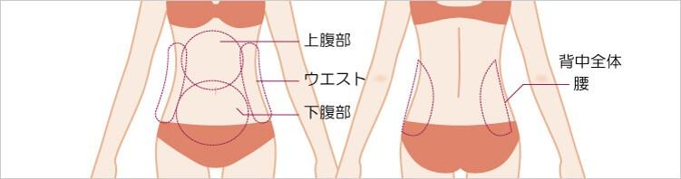 腹部・ウエスト・腰の吸引部位と傷口の位置1