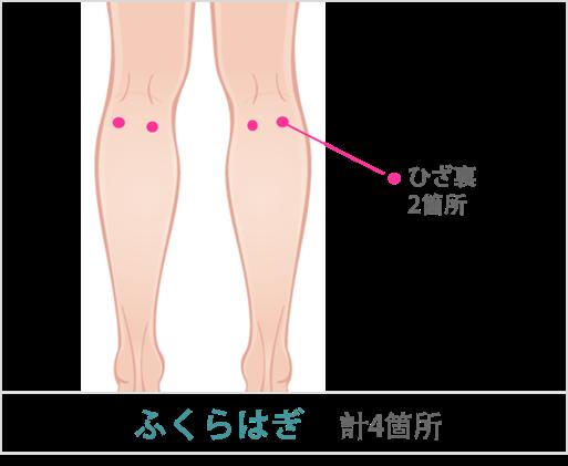 ふくらはぎの吸引部位と傷口の位置2