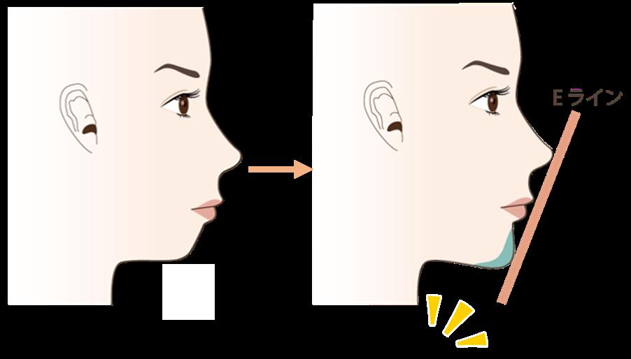 顎のヒアルロン酸注入の効果2