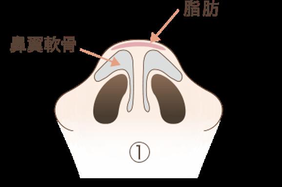 だんご鼻の3つの原因1