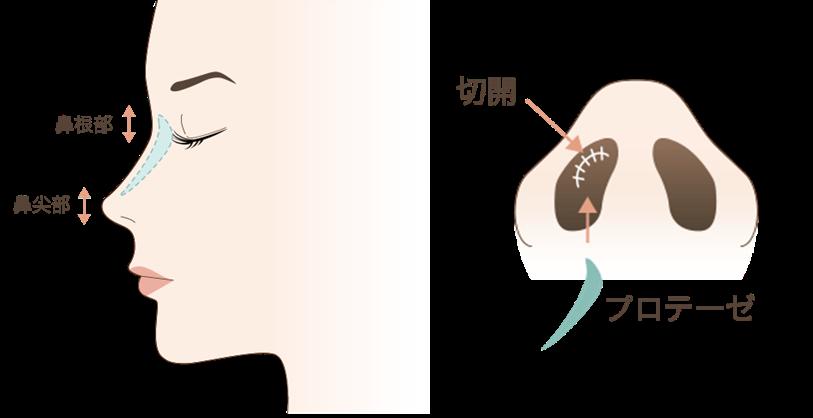 鼻プロテーゼの効果