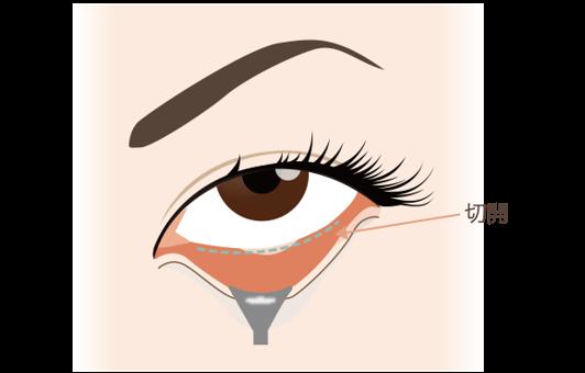 目の下の脂肪取りのメリット目の下の脂肪取りは、目の下を専用の器具で牽引してアッカンベーをした状態で下まぶたの内側(粘膜部分)を切開して脂肪を除去するため、表面に傷が付きません。また、粘膜は傷の治りも早く縫合の必要がないため、抜糸にご来院頂くこともありません