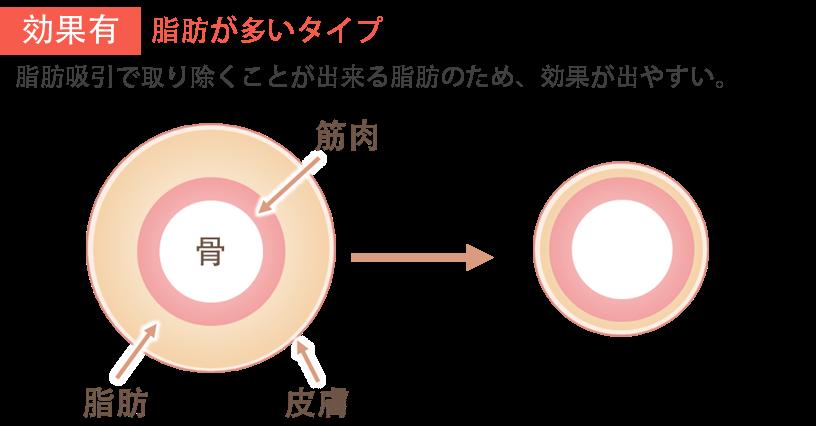 ふくらはぎの脂肪吸引の効果1