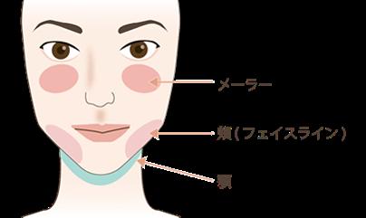 顔の脂肪吸引の吸引部位と傷口の位置1