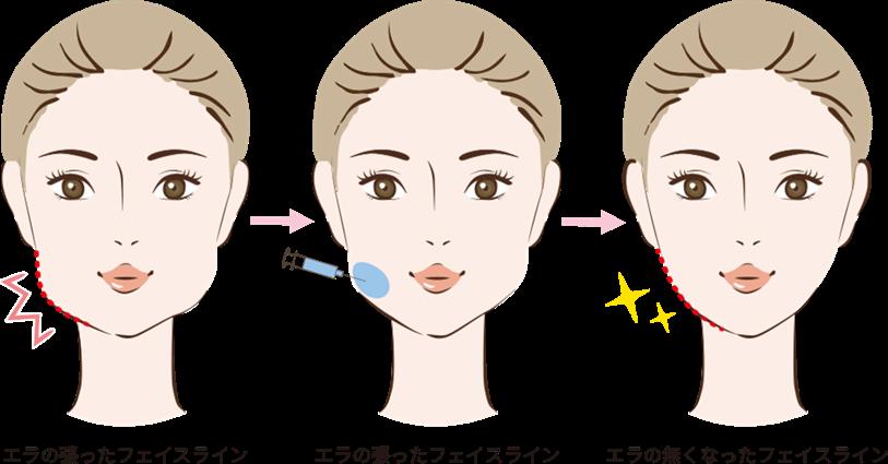 エラの小顔注射の効果
