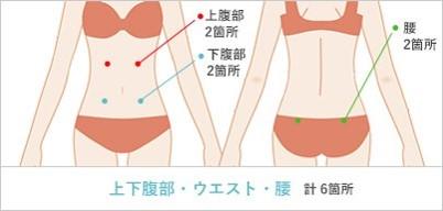 腹部・ウエスト・腰の吸引部位と傷口の位置2